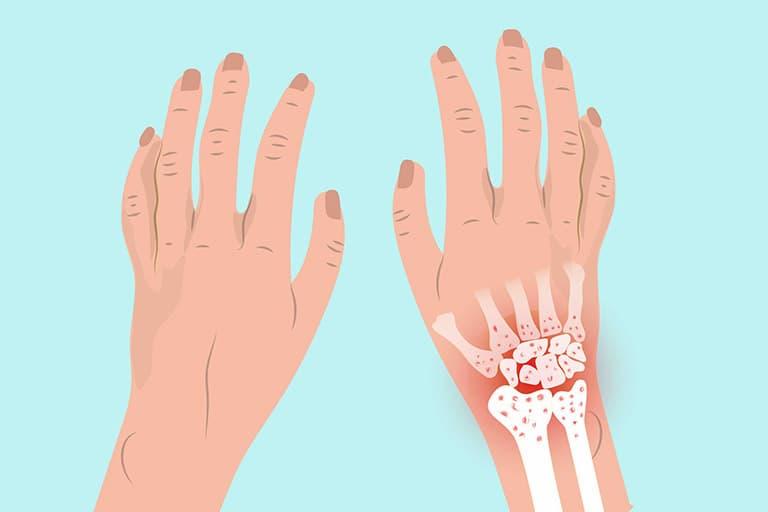 Viêm khớp cổ tay là tình trạng hao mòn của các khớp