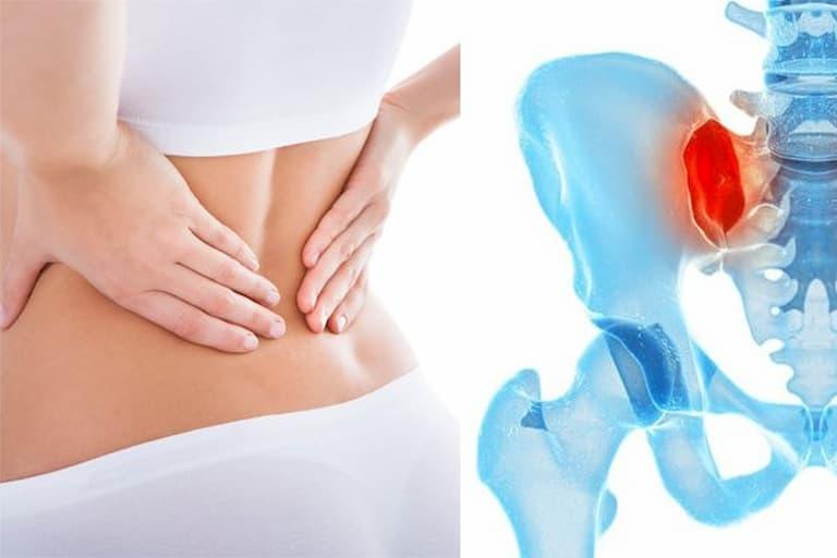 Viêm đau khớp cùng chậu ảnh hưởng đến nhóm khớp sacroiliac