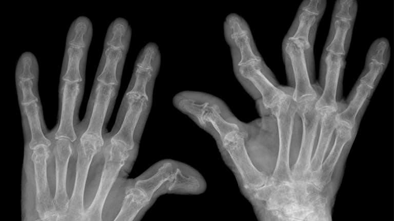 Biến dạng khớp là một trong các biến chứng người bệnh thường gặp phải