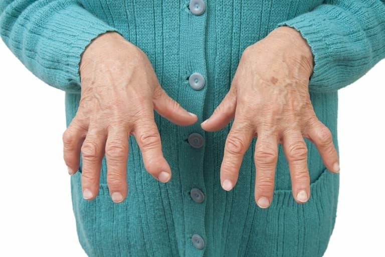 Người cao tuổi có nguy cơ mắc viêm xương khớp tay cao hơn