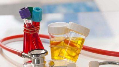 Xét nghiệm viêm đường tiết niệu là như thế nào? Các chỉ số quan trọng