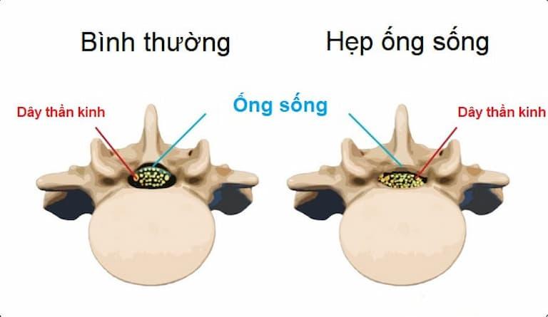 Ống sống bị hẹp dễ gây áp lực lên dây thần kinh và tủy sống