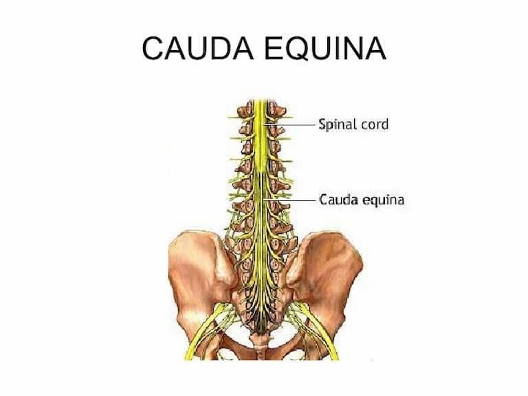 Bệnh xảy ra khi dây thần kinh nằm ở thắt lưng bị chèn ép