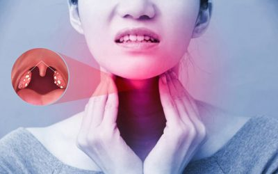 Top 5+ nhóm thuốc trị viêm amidan dứt điểm được bác sĩ khuyên dùng
