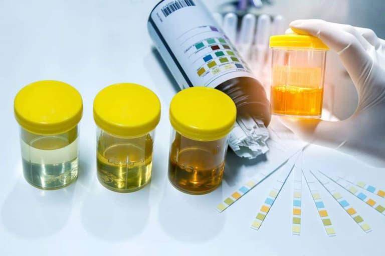 Kiểm tra nước tiểu là biện pháp chẩn đoán phổ biến