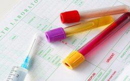 Tiểu buốt ra máu uống thuốc gì tốt giúp bệnh khỏi hoàn toàn?