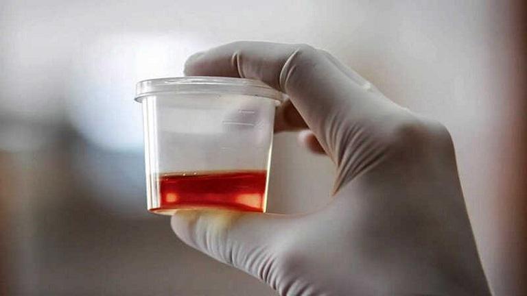 Tiểu buốt ra máu là bệnh nguy hiểm, cần được điều trị sớm