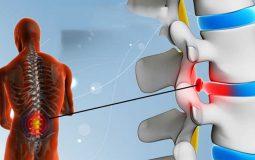 Tìm hiểu về bệnh lý lồi đĩa đệm và các phương pháp điều trị