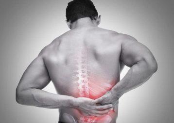 Thoát vị đĩa đệm chèn dây thần kinh là gì? Cách điều trị ra sao?