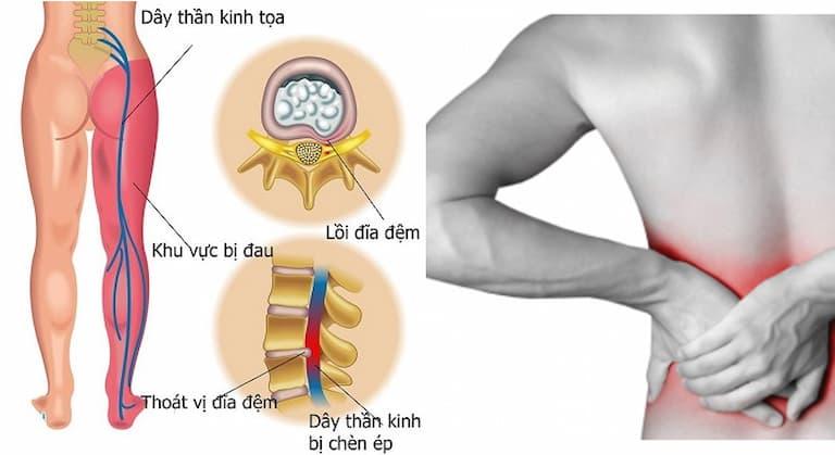 Thoát vị đĩa đệm chèn dây thần kinh là giai đoạn tiến triển nặng của bệnh thoát vị
