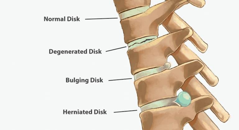 Đĩa đệm thắt lưng thoát vị khi bao cơ xơ bên ngoài bị rách vỡ
