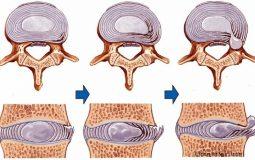 Thoát vị nội xốp: Dấu hiệu bệnh và các biện pháp điều trị