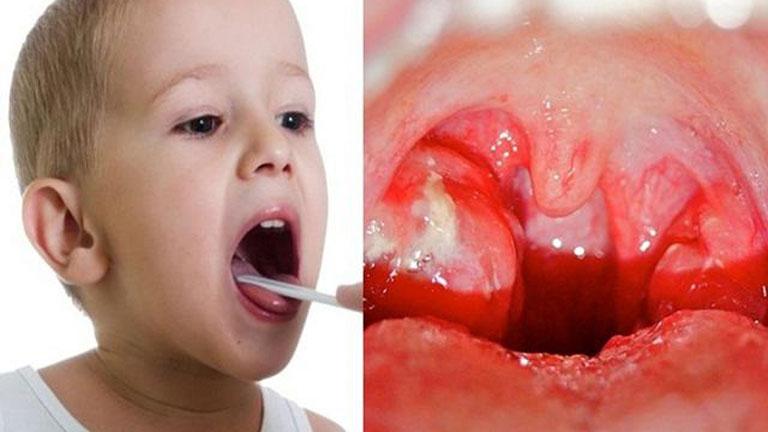 Viêm amidan ở trẻ em là bệnh lý thường gặp
