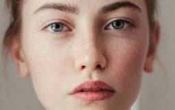 Viêm da tiếp xúc ở mặt: Giải pháp điều trị và hướng dẫn phòng ngừa
