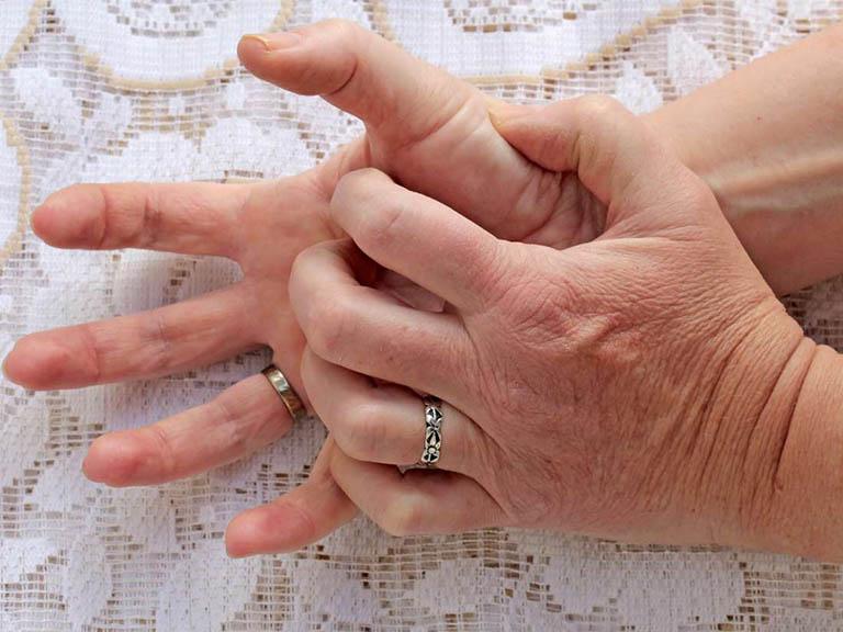 Viêm da tiếp xúc ở tay là vấn đề thường gặp