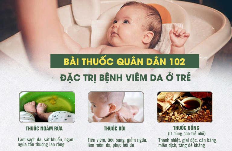 """Bài thuốc điều trị hiệu quả bệnh viêm da liên cầu ở trẻ với sự kết hợp """"trong uống, ngoài bôi"""""""