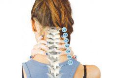 Hẹp ống sống cổ là bệnh gì? Triệu chứng và cách điều trị