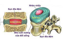 Rách vòng xơ đĩa đệm là gì? Hình ảnh, triệu chứng và cách điều trị