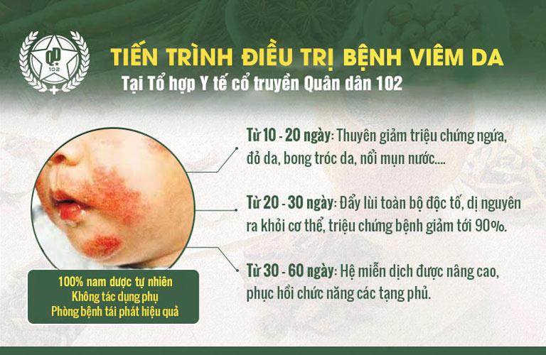 Bệnh viêm da liên cầu ở trẻ sẽ cải thiện rõ rệt theo từng giai đoạn