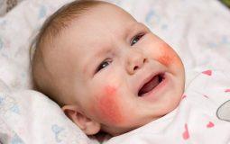 ệnh viêm da dị ứng ở trẻ sơ sinh và những điều cần biết