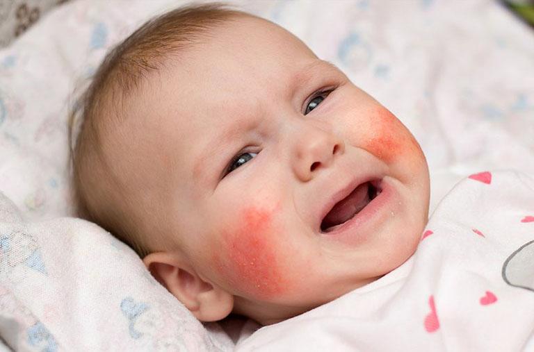 Viêm da dị ứng khiến trẻ nhỏ khó chịu, quấy khóc
