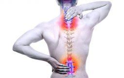 Cách chữa thoát vị đĩa đệm cột sống thắt lưng hiệu quả nhất, mới nhất