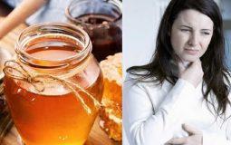 TOP 11 cách chữa viêm amidan hốc mủ bằng mật ong hiệu quả bạn nên biết