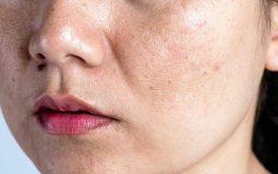 Da mặt bị khô sần và ngứa: Thông tin quan trọng cần biết
