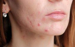 Da mặt bị ngứa và nổi mụn là bệnh gì? [Thông tin chi tiết]
