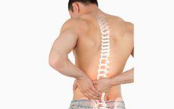 Bệnh hẹp ống sống thắt lưng: Nguyên nhân và cách phòng tránh, chữa bệnh hiệu quả