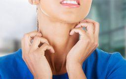 Ngứa vùng cổ: Nguyên nhân, triệu chứng và cách điều trị