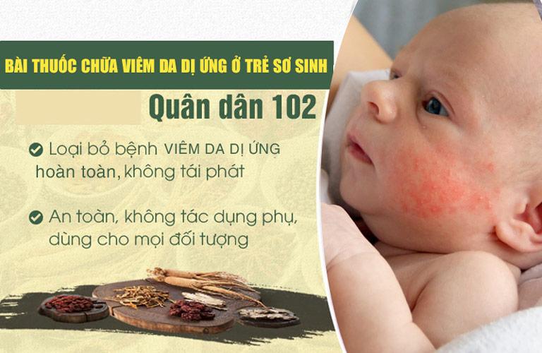 Bài thuốc Quân dân 102 là lựa chọn tối ưu để điều trị viêm da dị ứng ở trẻ sơ sinh