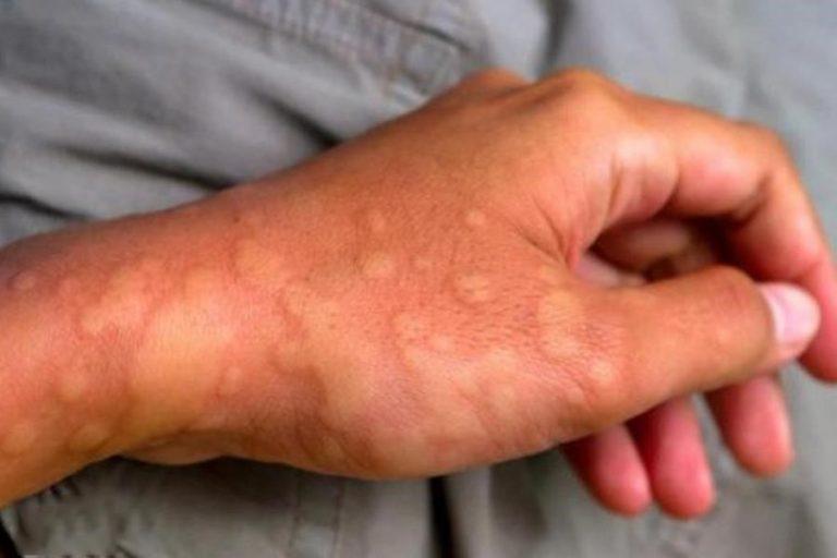 Bài thuốc Đông y giúp chữa mề đay mẩn ngứa tận gốc