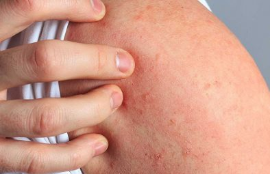 Nổi mẩn ngứa là bệnh gì? Nguyên nhân, cách điều trị hiệu quả