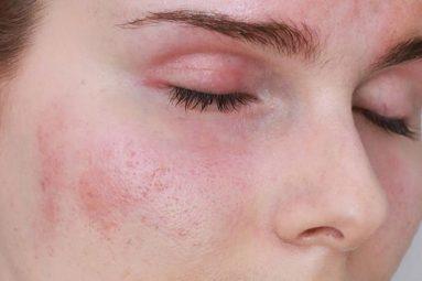 Nổi mề đay ở mặt khiến người bệnh cảm thấy ngứa rát, châm chích