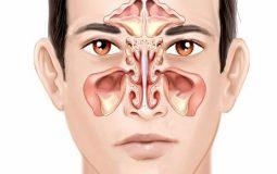 Viêm đa xoang là bệnh gì? Nguyên nhân, dấu hiệu nhận biết và điều trị