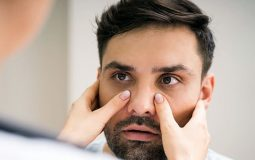 Viêm xoang gây sưng mặt: Nguyên nhân, triệu chứng và cách điều trị