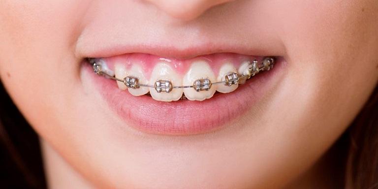 Tình trạng sai lệch khớp cắn càng nặng thì chi phí niềng răng hô hàm càng cao