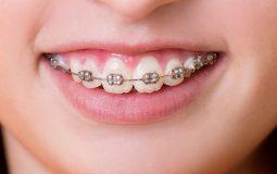 Chi phí niềng răng hô hàm