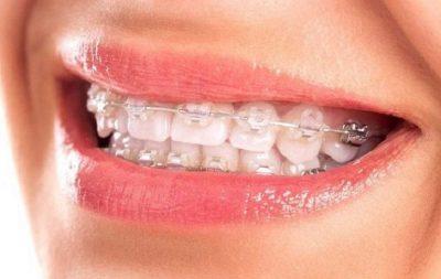 Niềng răng mắc cài sứ tự buộc