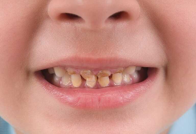 Răng bé bị ố vàng có thể xuất phát từ thói quen sử dụng nhiều đồ ngọt