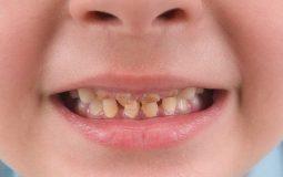 Răng bé bị ố vàng