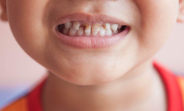 Sâu răng, viêm lợi là nguyên nhân điển hình gây ra tình trạng đau răng ở trẻ nhỏ