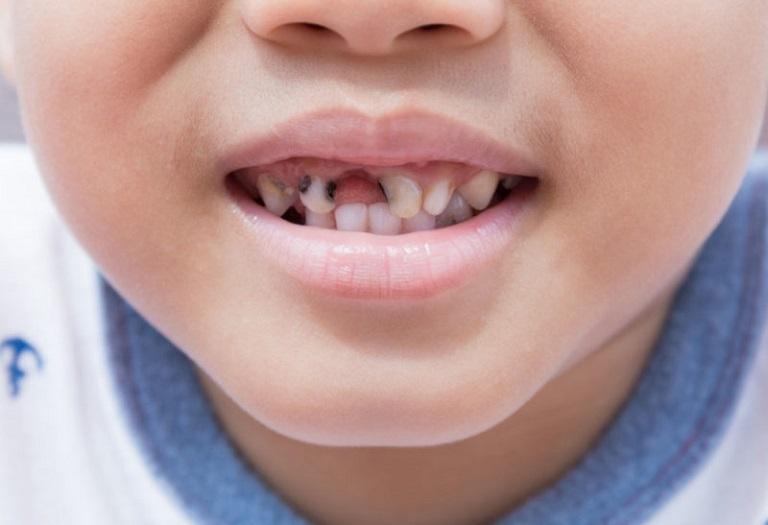 Đau nhức răng do sâu có thể khiến bé bị mất răng sớm nếu không được điều trị kịp thời