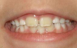 Cách chữa răng ố vàng cho bé