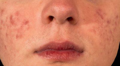 Da mặt khô ngứa mẩn đỏ: Thông tin quan trọng cần biết