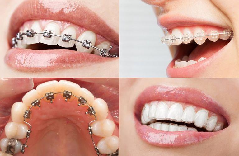 Phương pháp niềng răng là yếu tố quyết định giá niềng răng