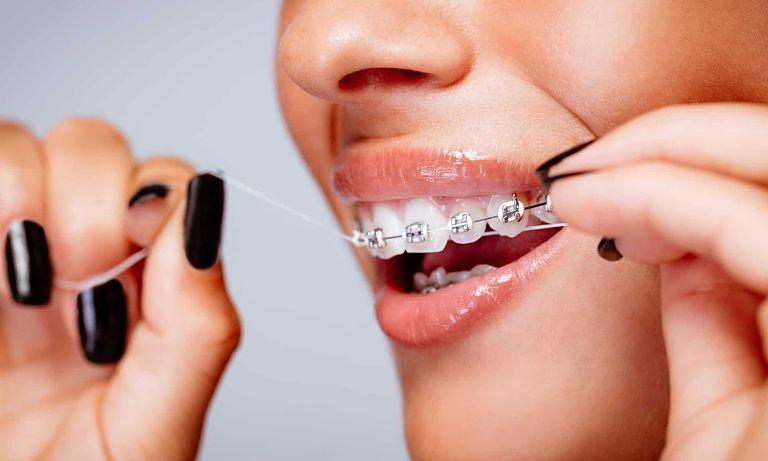 Giá niềng răng thay đổi tùy vào trường hợp cụ thể