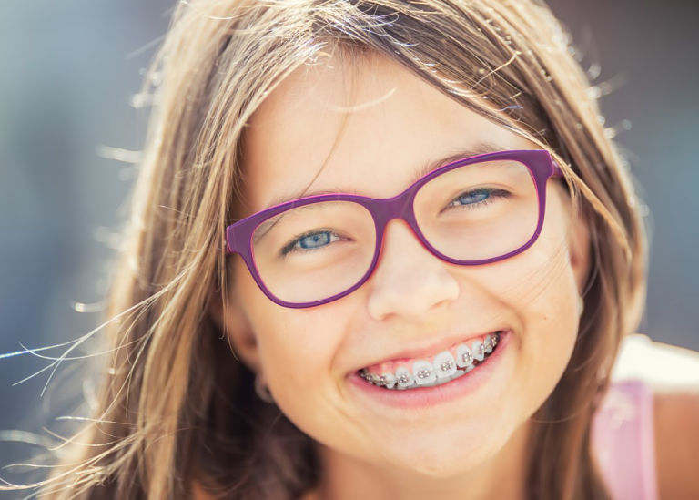 Lựa chọn thời điểm niềng răng thích hợp giúp bạn tiết kiệm chi phí niềng răng