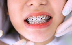 Tùy thuộc vào độ tuổi mà chi phí niềng răng cũng sẽ có phần khác nhau